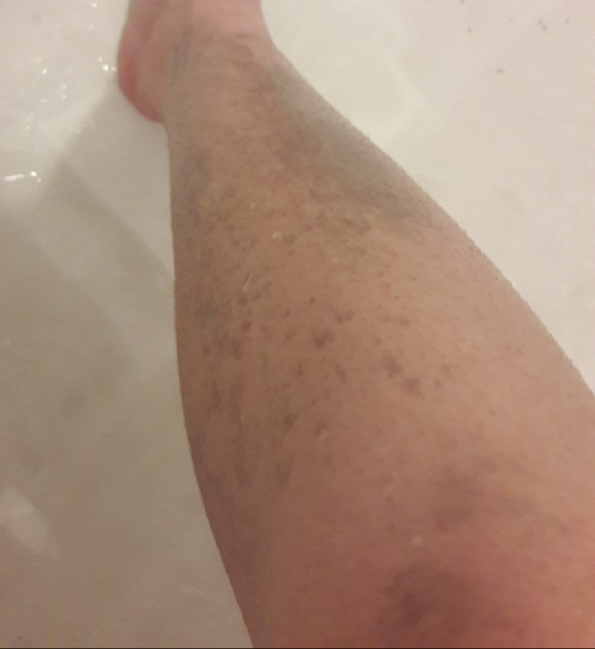 Blaq meteor scrub post-rinsing. My leg is gray and patchy, despite evenly rinsing it off.