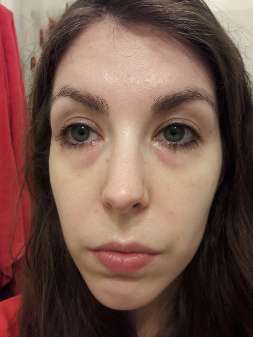 My face after the patches. My undereyes look a little better, but I still need to sleep.